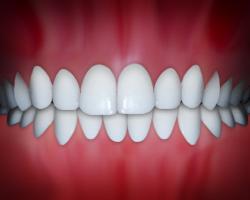 dental midlines